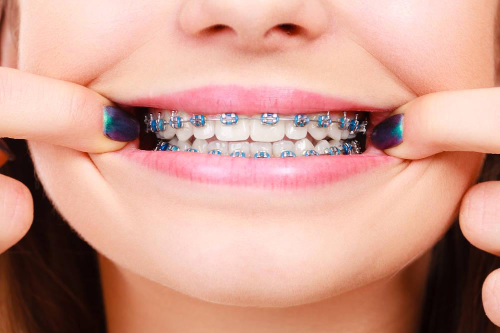 Descubre los últimos avances en ortodoncia